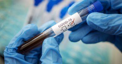 В Гагаузии число инфицированных covid-19 стало расти. За минувшие сутки выявлено 30 новых случаев