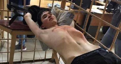 У напавшего на школу в Казани диагностировали болезнь мозга