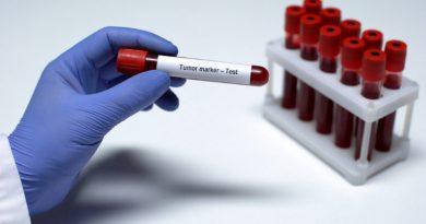 В Великобритании испытывают тест, который позволит выявить рак до появления первых симптомов